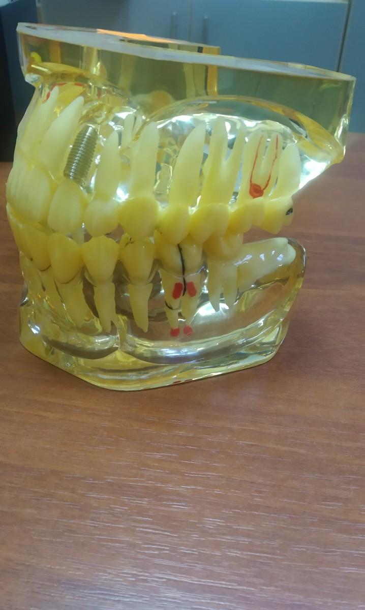Обучающая модель 4005 имплантации зубов