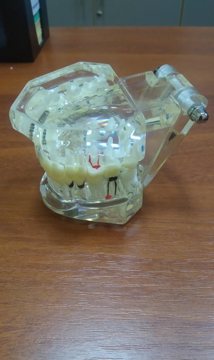 Демонстрационная модель с имплантами и корневыми каналами 2001
